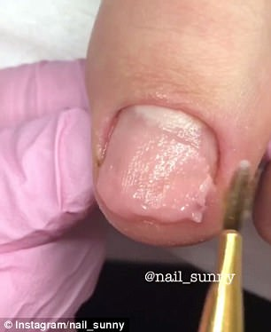 Addictive: The nail technician worked true magic with the broken and fungus-infected toenails using a variety of tools